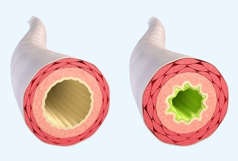 Asthma bronchiale – Symptome