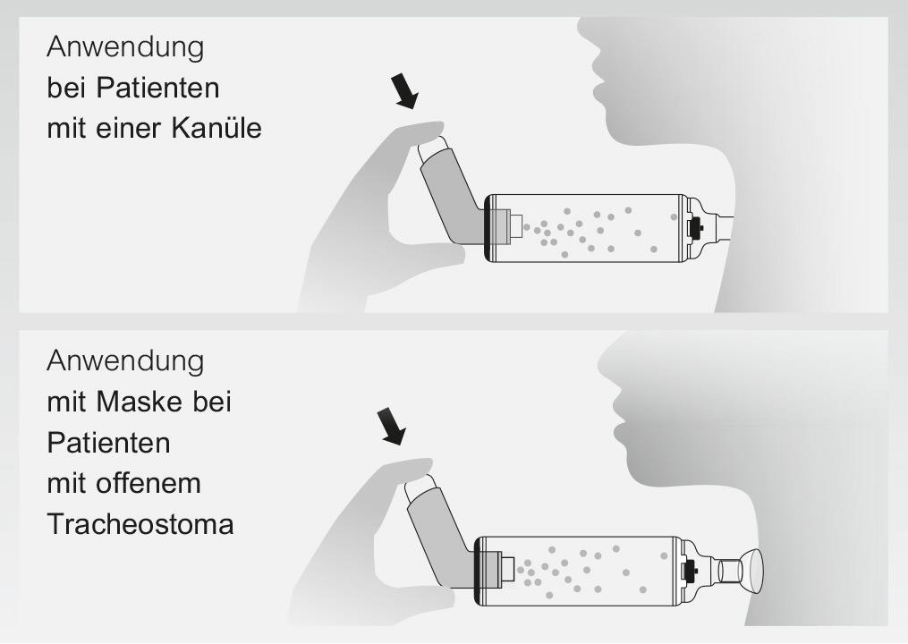RC-Chamber reusable Anwendung